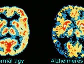 Magyar tudósok áttörést értek el az Alzheimer-kór korai diagnózisával